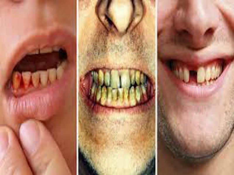 tooth problem