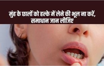 99% लोगों को नहीं पता मुंह में छाले होने की ये सच्चाई, ज़रूर पढ़िए ये लेख