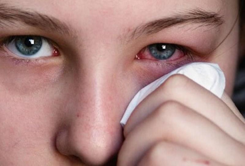 Ocular Paralysis